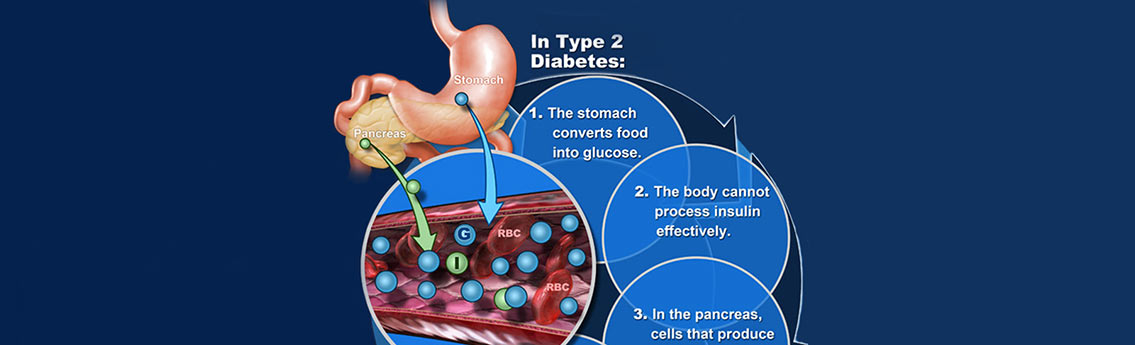 Diabetes Facts and Statistics Infographic