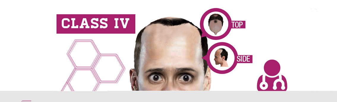 Male Hair Loss Classification Infographic