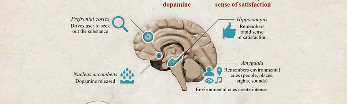 Rewiring the Brain with Neuroplasticity Infographic