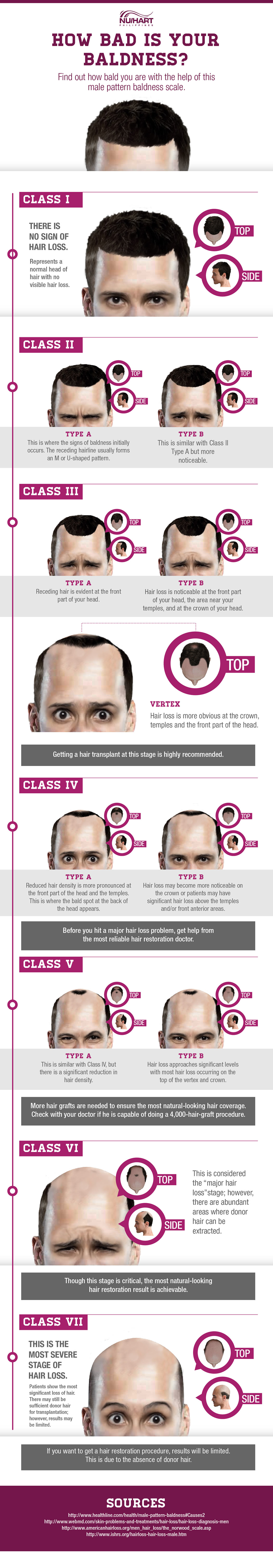 Stages of Male Pattern Baldness - Hair Loss Chart Infographic