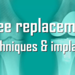 Latest Technology in Knee Replacement Surgery