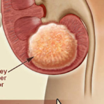 Kidney Cancer: Symptoms and Treatment