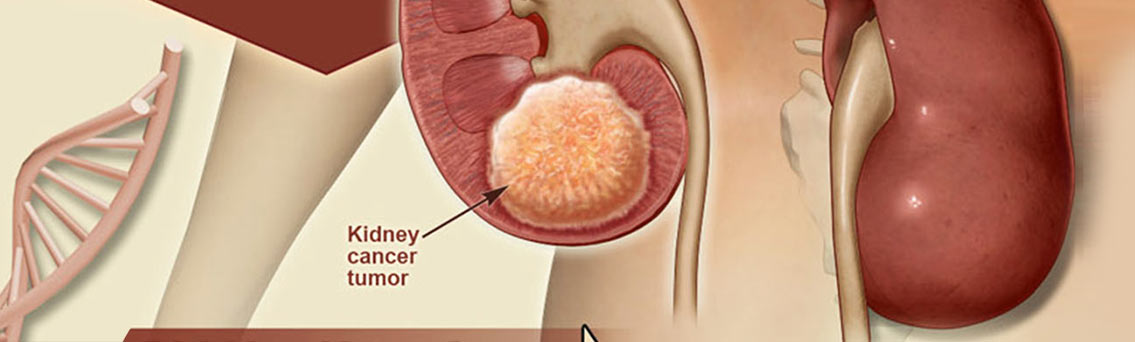 Kidney Cancer Symptoms and Treatment