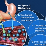 Diabetes: How It Affect YOU