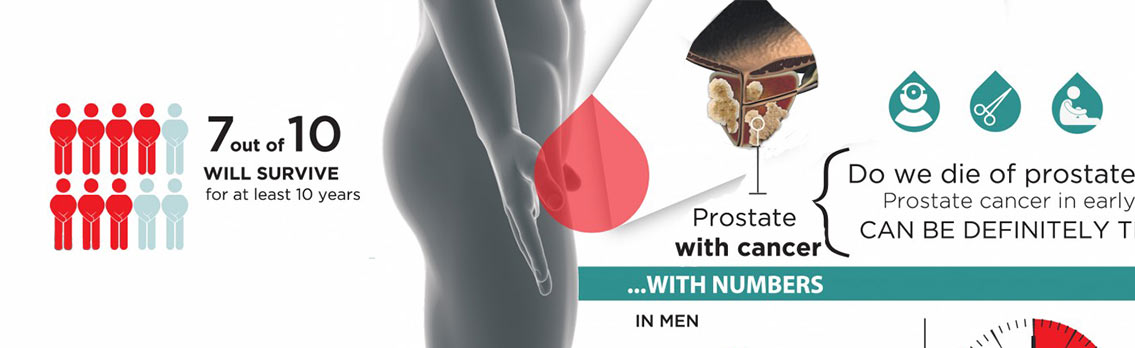 Prostate Cancer Facts and Statistics