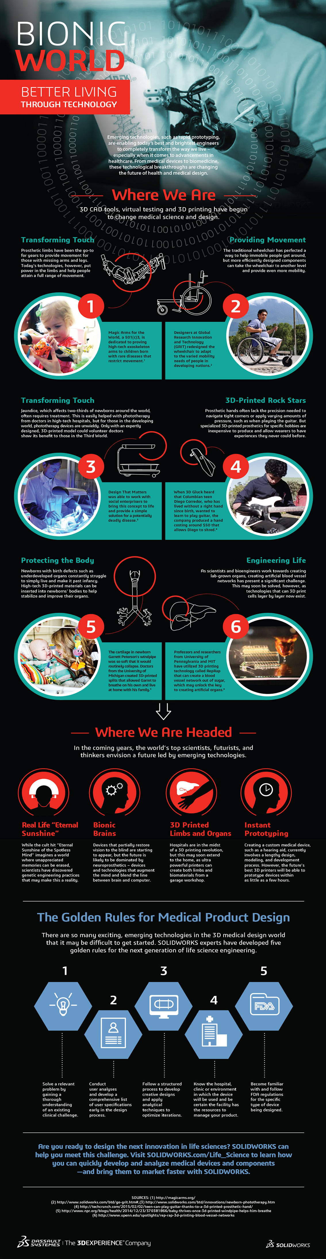 How Bionic Limbs Improve the Lives of Amputees Infographic